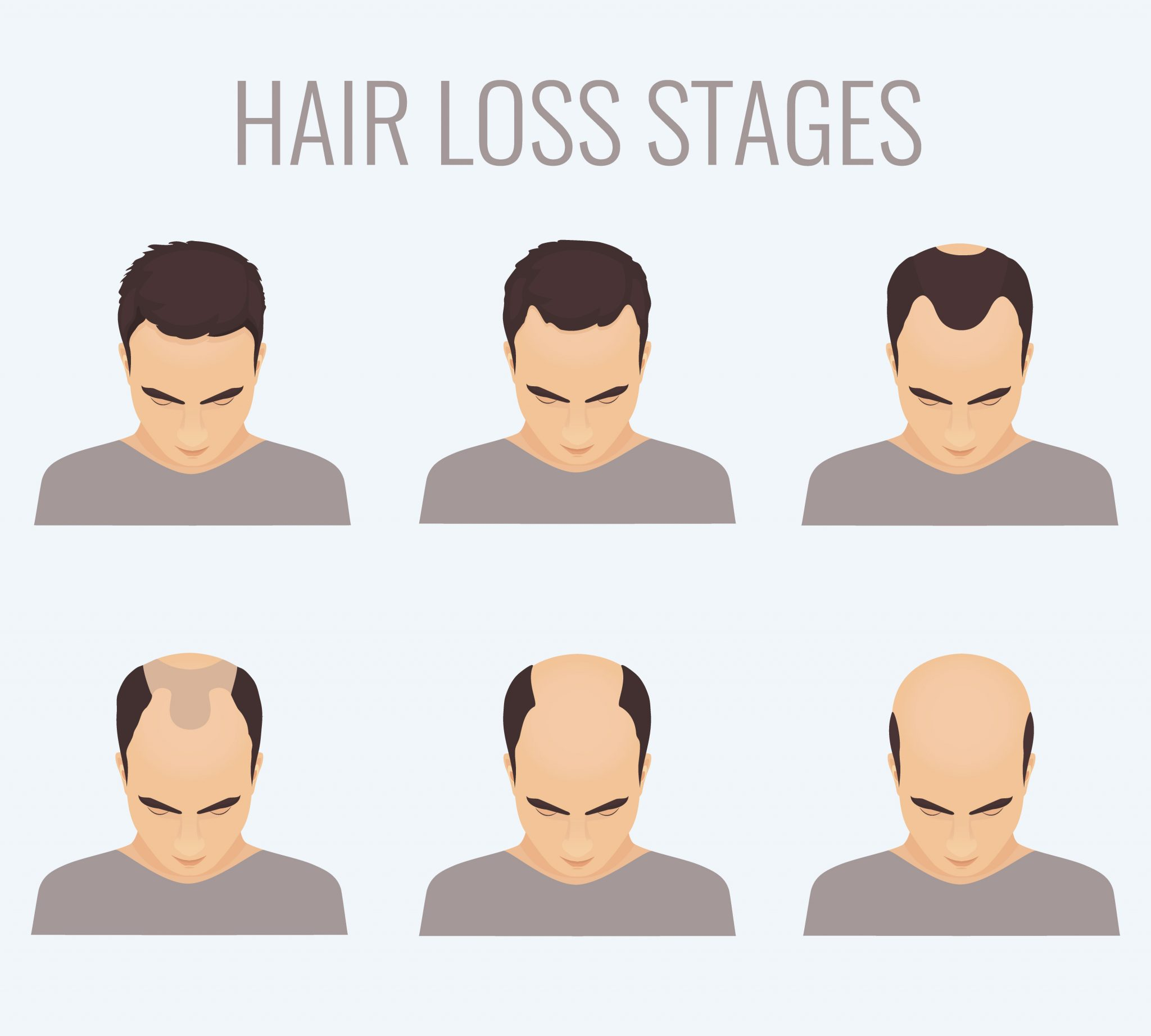 what causes hair loss