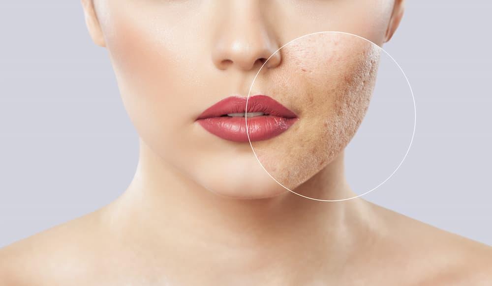 Acne Scars Treatment | Focal Point Salon & Spa