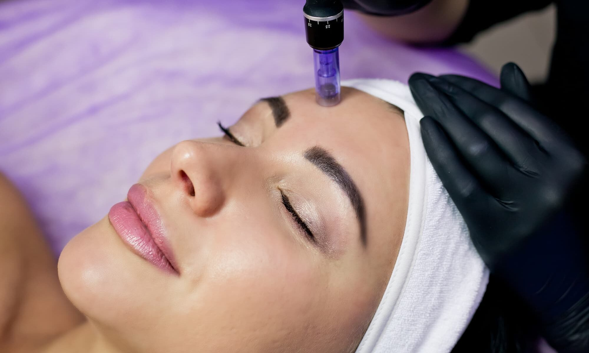 Microneedling in the Summer   Focal Point Salon & Spa